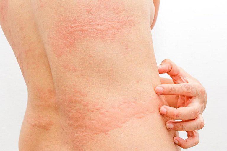 Lá mề đay có tác dụng đẩy lùi tình trạng ngứa ngáy, sưng đỏ trên da
