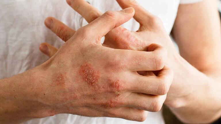 Không dùng tay cào gãi lên vùng da bị tổn thương gây nhiễm trùng lan rộng