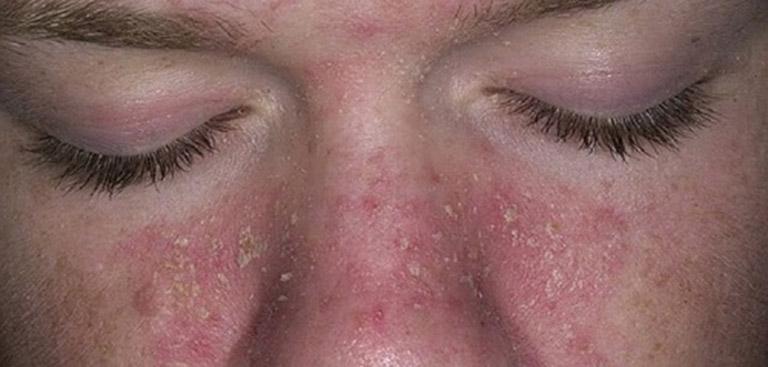 Viêm da dầu khiến người bệnh cảm thấy ngứa ngáy khó chịu và mất thẩm mỹ trên da