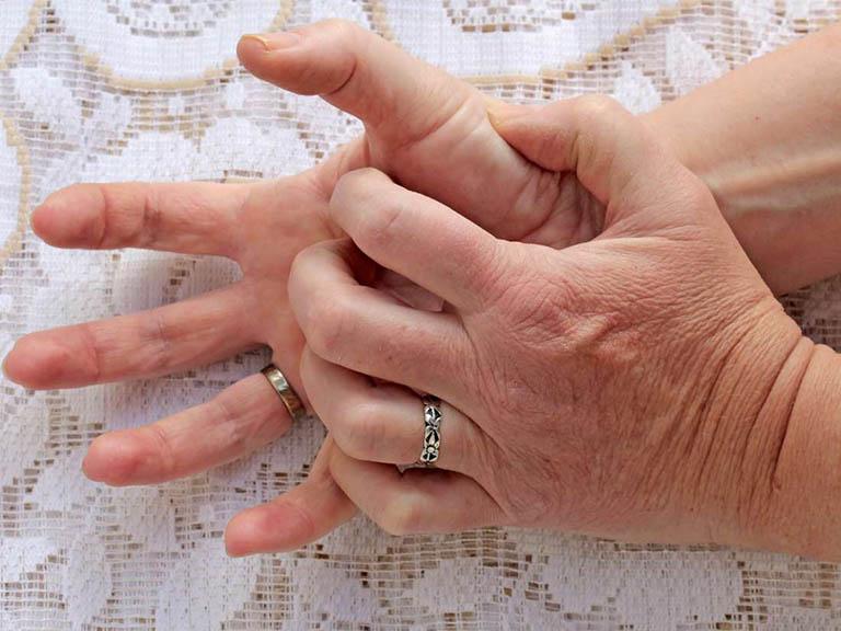 Viêm da tiếp xúc ở tay