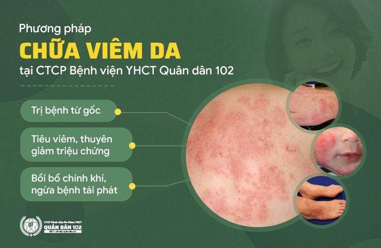 Phương pháp chữa viêm da Quân dân 102 mang đến nhiều tác động toàn diện