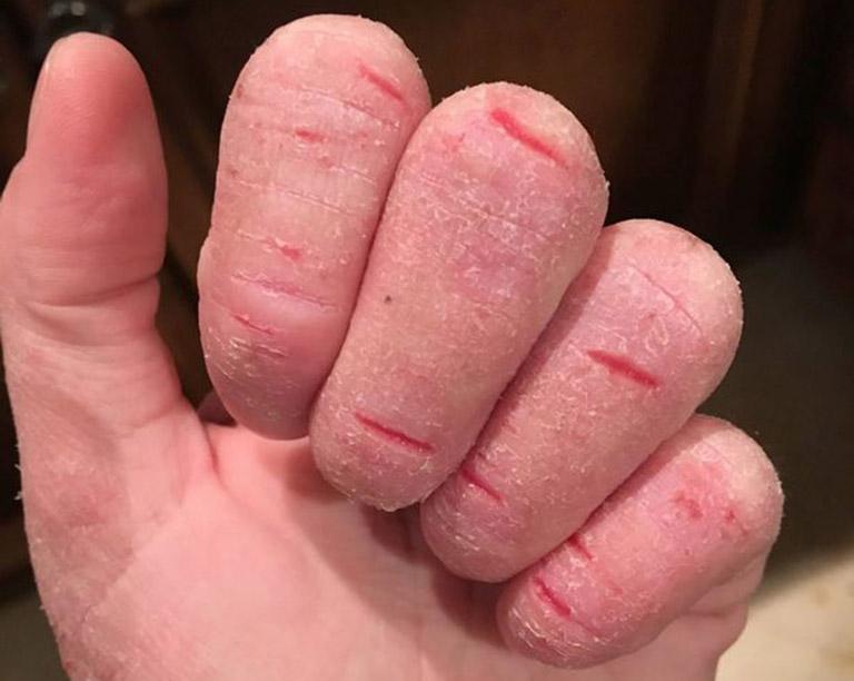 Bệnh gây ra các vết nứt trên da khiến người bệnh cảm thấy đau nhức, gia tăng nguy cơ nhiễm trùng