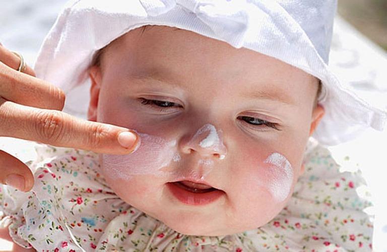 chữa bệnh chàm sữa cho trẻ