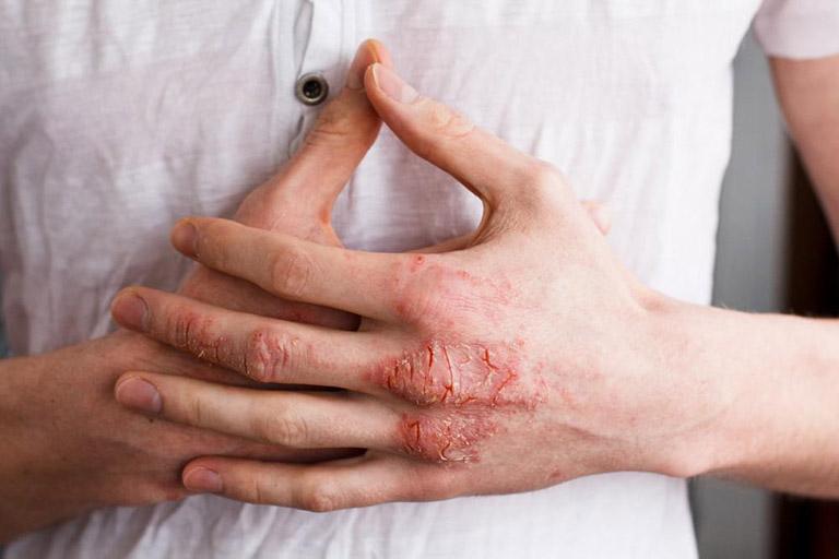 Bệnh eczema chữa khỏi không