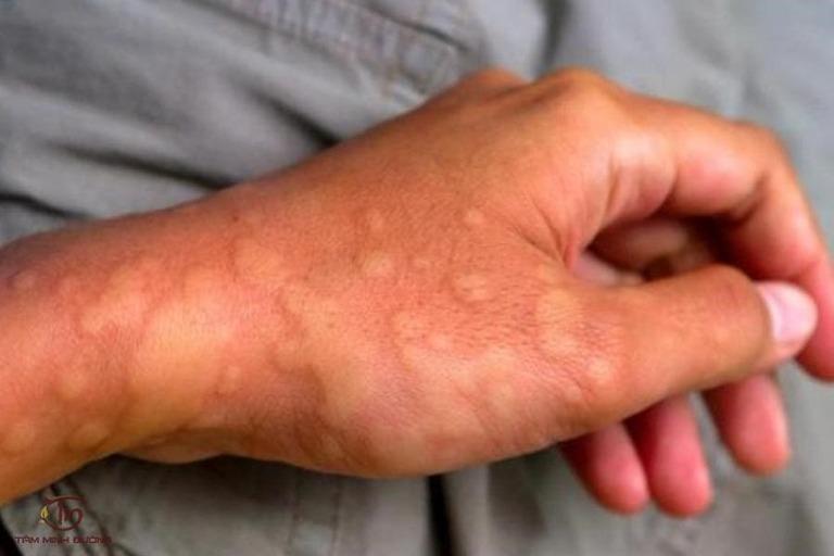 Bệnh mề đay có chữa khỏi hẳn được không?