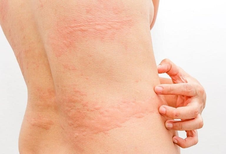 Bệnh mề đay có chữa được không?