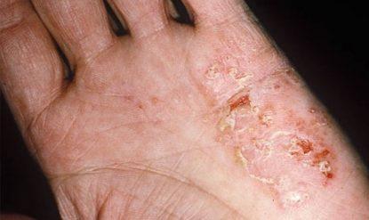 Bệnh tổ đỉa có nguy hiểm không? Nhận định từ bác sĩ
