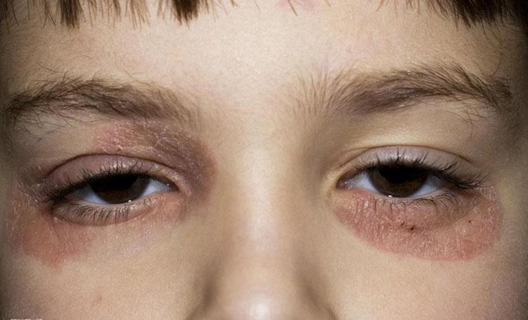 Vẩy nến gây tổn thương đến vùng mắt, ảnh hưởng đến thị lực của người bệnh