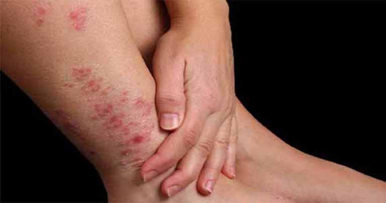 Viêm da tiếp là bệnh lý da liễu thường gặp do tiếp xúc với tác nhân gây kích ứng
