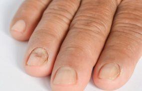 Chàm móng tay - Nguyên nhân và cách điều trị