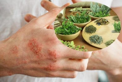 chữa Eczema bằng thuốc Nam