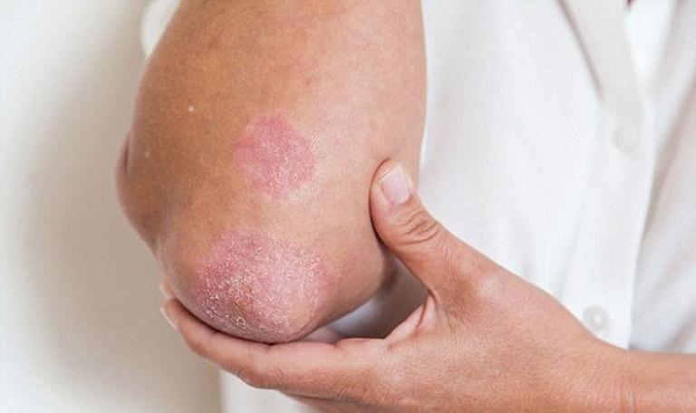 Hoạt chất trong lá khế giúp đẩy lùi triệu chứng bong tróc, ngứa ngáy trên da do bệnh gây ra