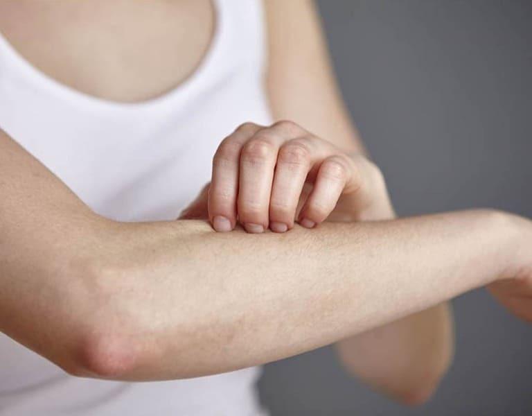 Cách chữa viêm da dị ứng bằng bài thuốc nam dễ kiếm