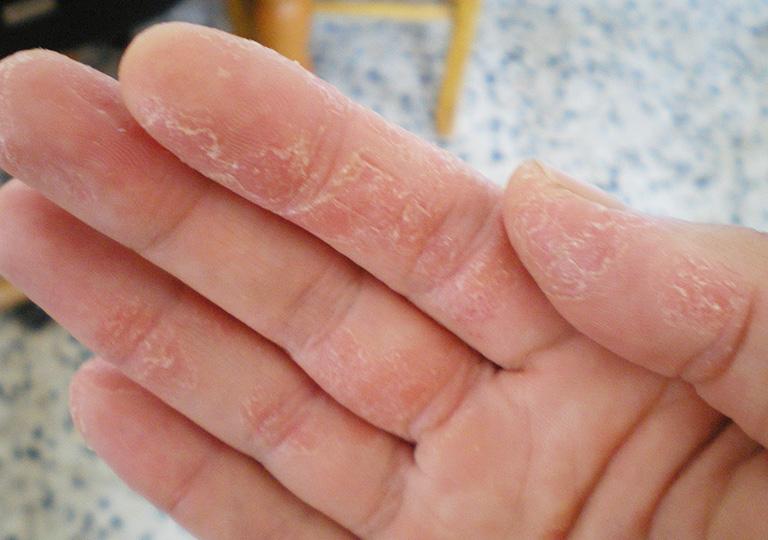 khô và bong tróc da