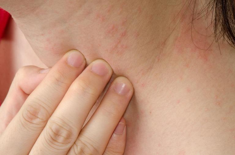 Da bị nổi sần và ngứa là bệnh gì? Làm sao khỏi ?