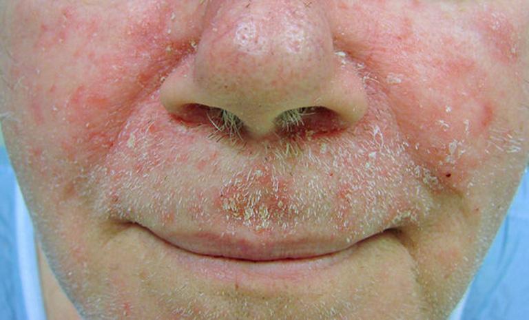 mặt bị nổi mẩn đỏ không ngứa