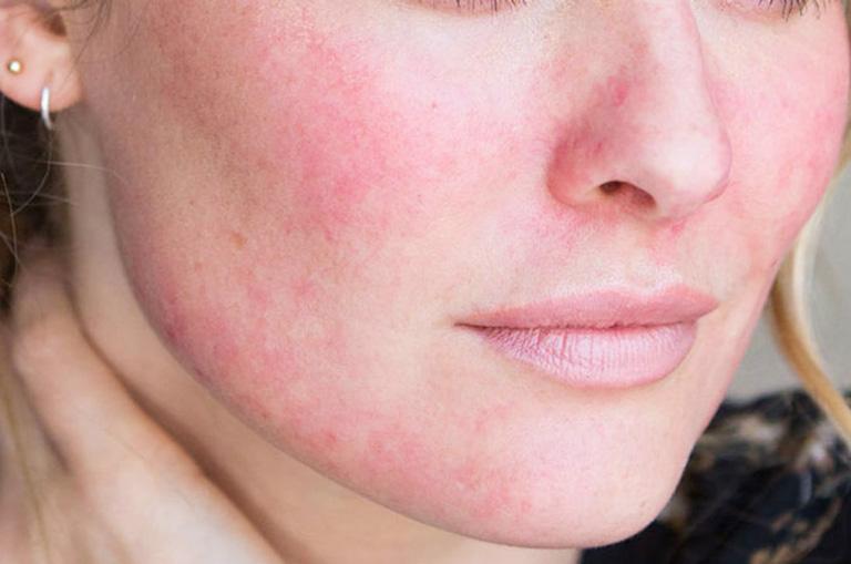 da mặt nổi mẩn đỏ không ngứa