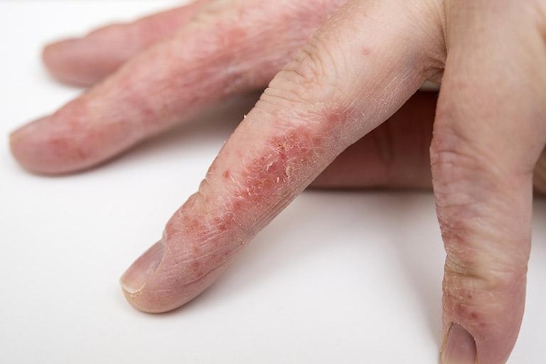 Da tay chân khô bong tróc