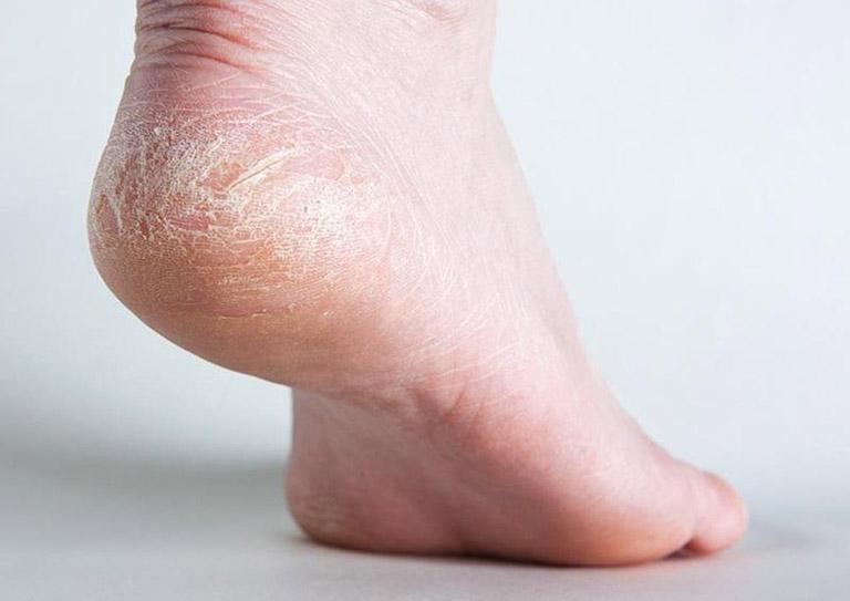 cách trị khô da tay chân