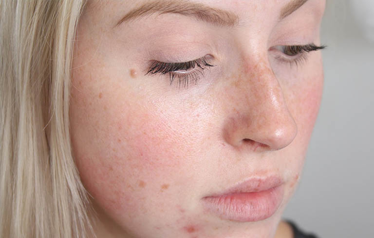 da mặt bị dị ứng thời tiết