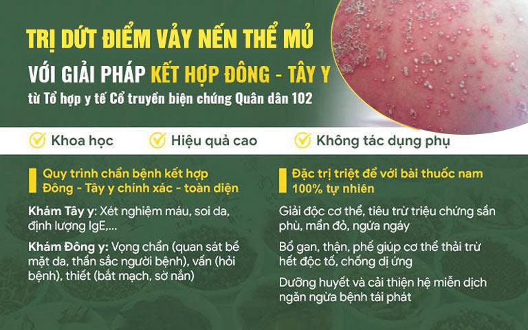 Kết hợp Đông - Tây y giúp xử lý vảy nến thể mủ nhanh chóng, ngăn ngừa biến chứng