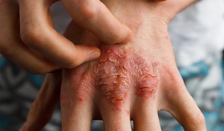 Bệnh eczema có lây không?