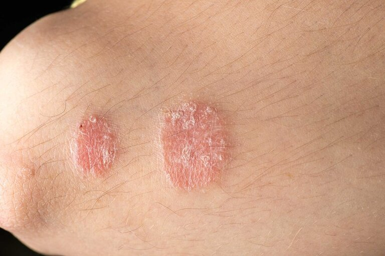 Dùng hành hoa chữa bệnh vẩy nến hiệu quả trong những trường hợp nhẹ. Đồng thời, cách điều trị này chỉ kiểm soát và giảm nhẹ được triệu chứng, không chữa khỏi bệnh hoàn toàn,