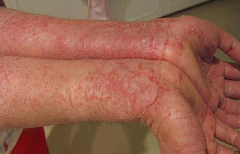 Viêm da dị ứng gây bong tróc, nứt nẻ trên da khiến làn da bị mất thẩm mỹ nghiêm trọng