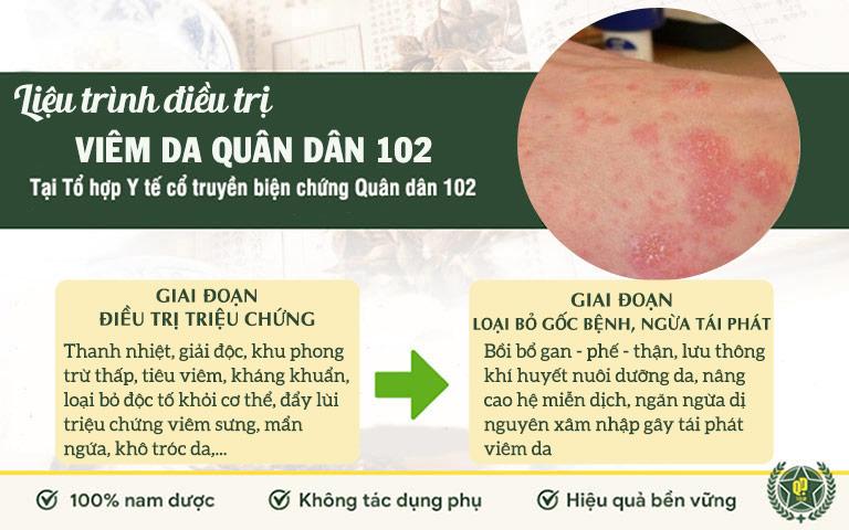 Bài thuốc viêm da Quân dân 102 được ưng dụng theo phác đồ điều trị 2 giai đoạn riêng biệt, khoa học