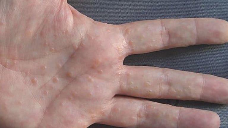 Lòng bàn tay bị ngứa nổi hột
