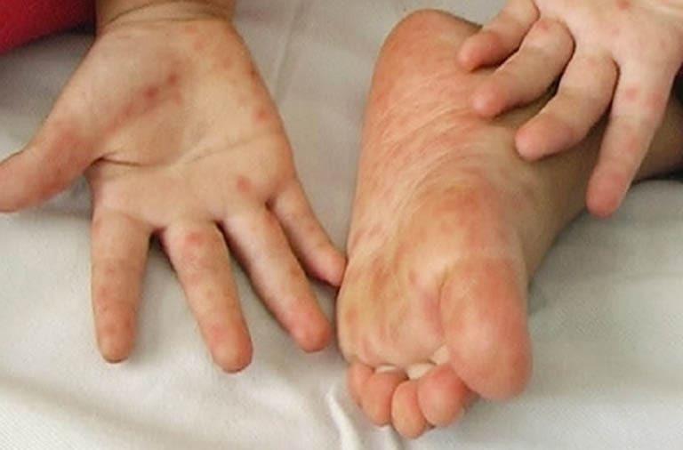 Lòng bàn tay bị ngứa nổi hột là bệnh gì