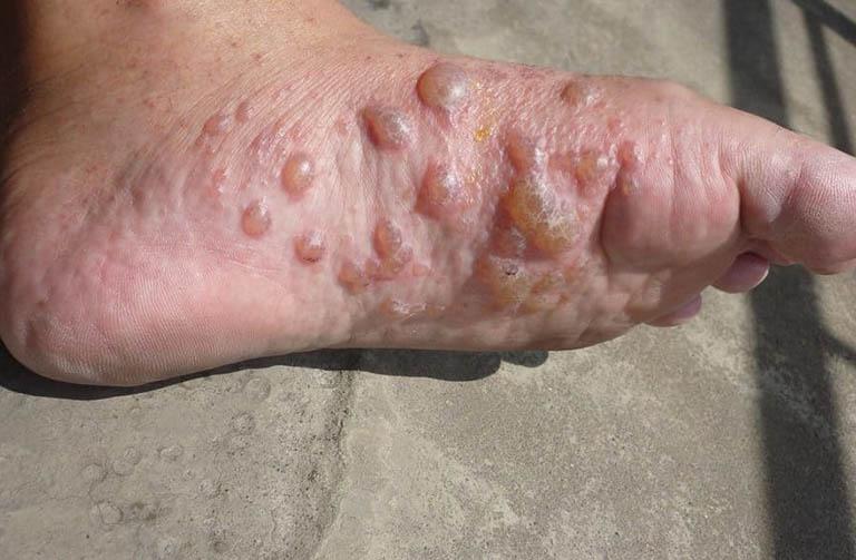 Mọc mụn nước ở chân và ngứa là bệnh gì?