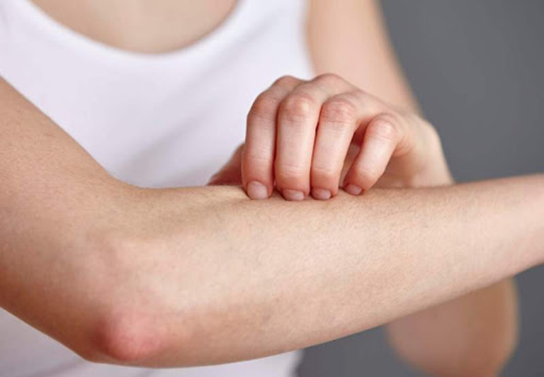 Không nên dùng tay cào gãi lên da sẽ khiến da bị tổn thương và cơn ngứa trở nên nghiêm trọng hơn