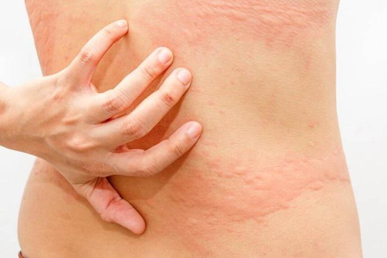 Nổi mẩn đỏ ngứa ở lưng: Nguyên nhân, cách chữa và phòng ngừa