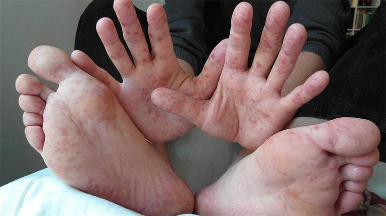 Nổi mẩn đỏ ở tay chân không ngứa