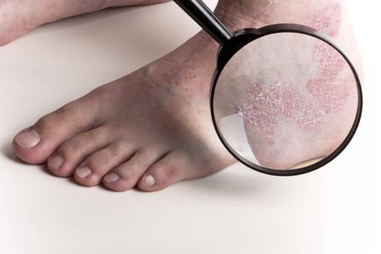 Ngoài tính chất của các tổn thương trên da, chỉ số PASI còn được xây dựng dựa trên tổng diện tích vùng da bị vẩy nến.