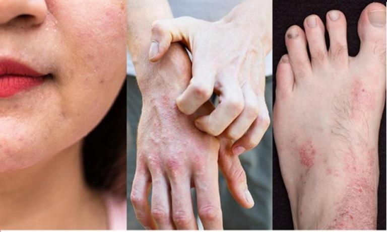 Lá ổi giúp cải thiện nhanh các triệu chứng của bệnh viêm da cơ địa trong trường hợp nhẹ.