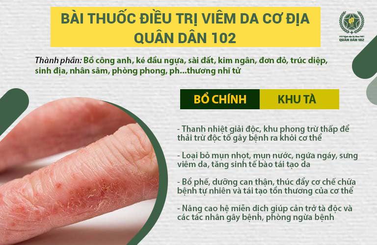 Thành phần, công dụng bài thuốc viêm da cơ địa Quân dân 102