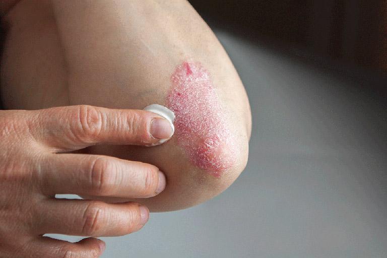 bệnh viêm da cơ địa ở người lớn