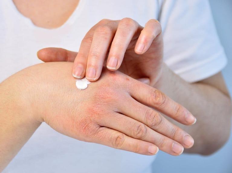 thuốc chữa viêm da dị ứng