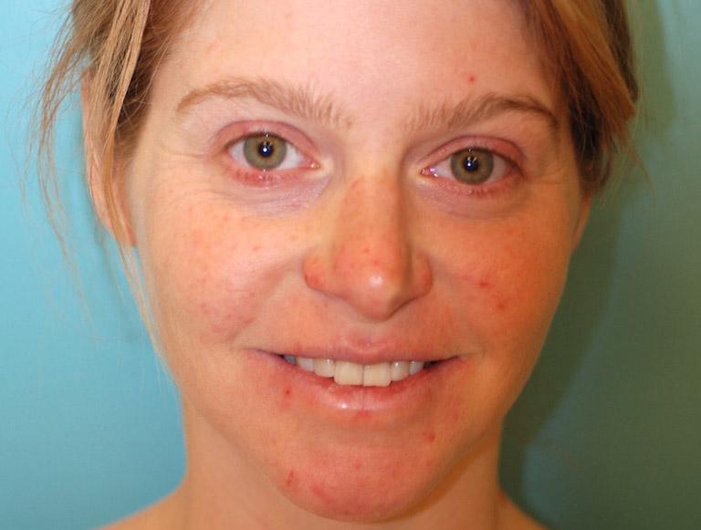 hình ảnh viêm da dị ứng ở mặt