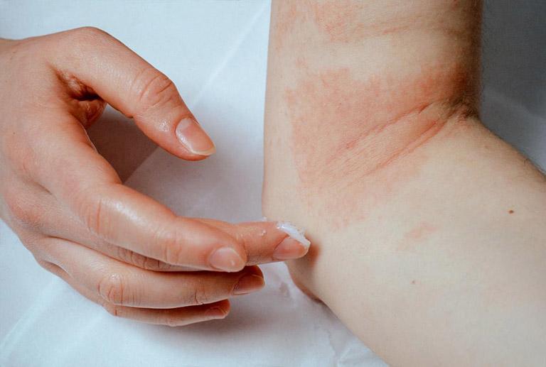 cách trị bệnh viêm da tiếp xúc