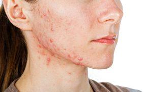Bị viêm da tiếp xúc thường bao lâu thì khỏi?