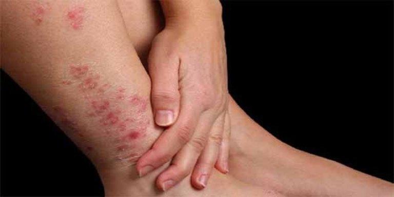 Trong trường hợp nhẹ và điều trị đúng cách, kịp thời, viêm da tiếp xúc thường không để lại sẹo.