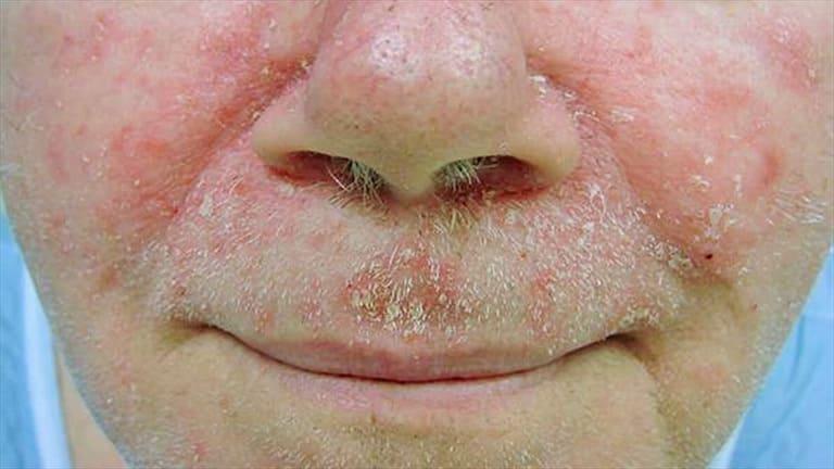 Ăn uống vô tội vạ sẽ khiến các tổn thương trên da do bệnh viêm da tiết bã gây ra thêm trầm trọng.