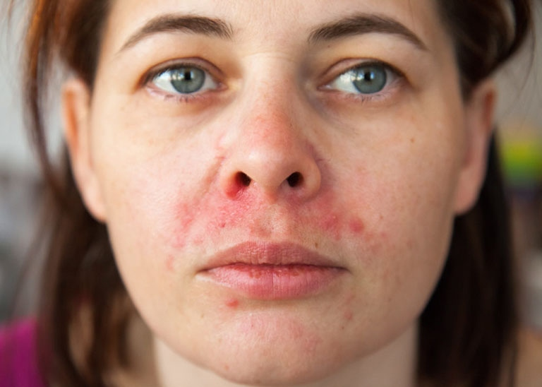 Viêm da tiết bã nhờn ở mặt gây ảnh hưởng đến thẩm mỹ bên ngoài của người bệnh