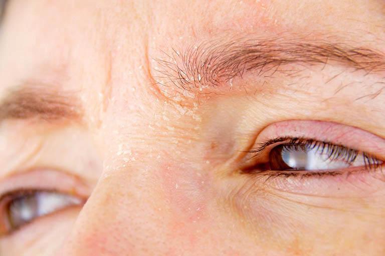 Viêm da tiết bã nhờn ở mặt hình thành nên các mảng bong tróc trên da