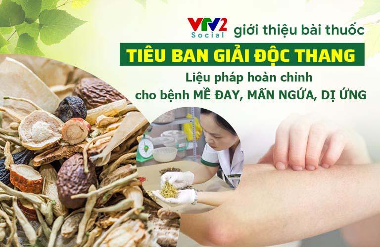 VTV2 giới thiệu bài thuốc đặc trị mề đay, dị ứng