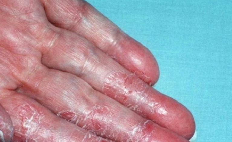 Bệnh á sừng liên cầu có thể gây hoại tử da