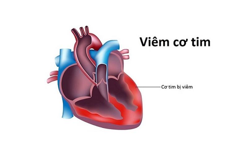 Bị sốt nổi mẩn ngứa có thể dẫn đến viêm cơ tim